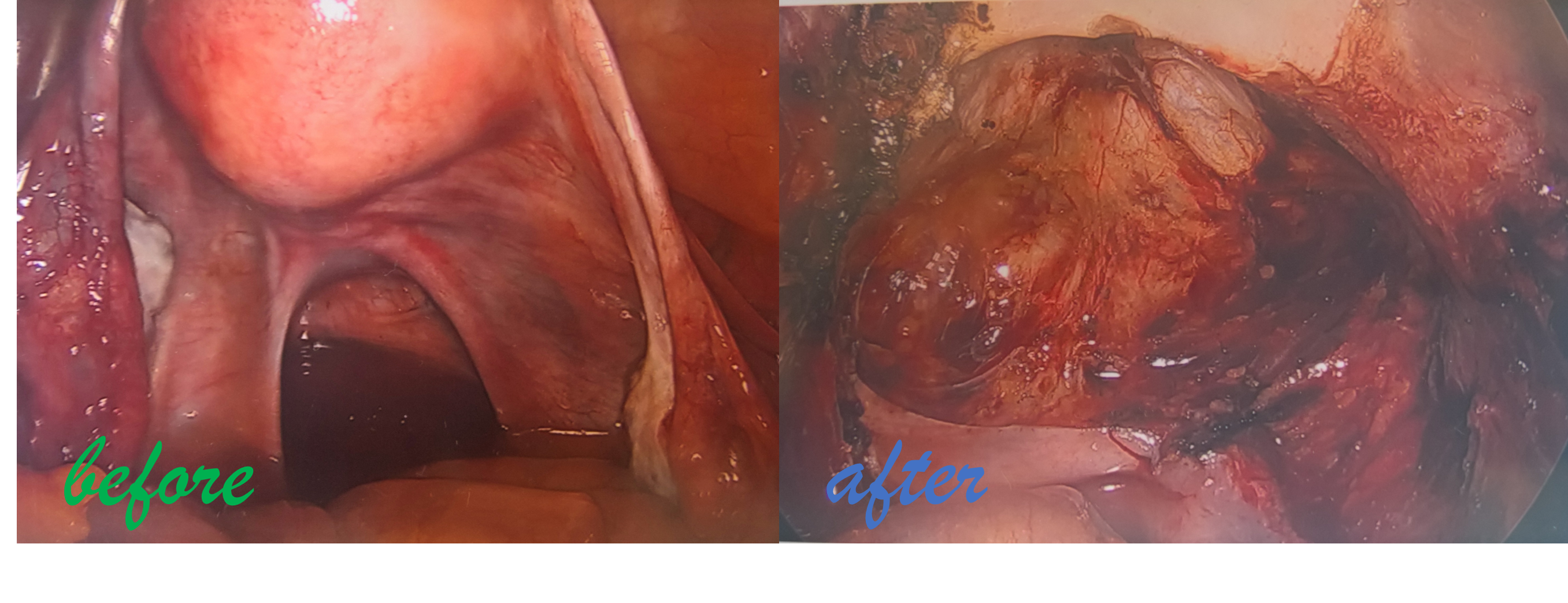 endometrosis before after